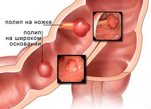 Боли при полипах в желчном пузыре