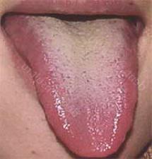 Темно желтый язык