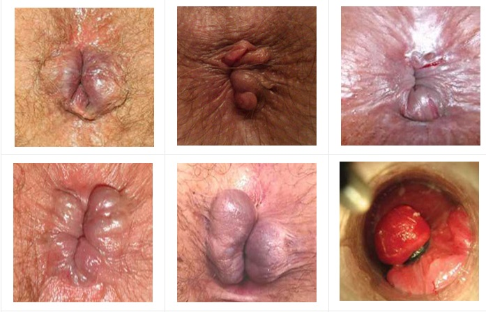 Какие симптомы могут указывать на появление геморроя у мужчин: стадии заболевания и его признаки, способы диагностики и профилактики, развенчиваем мифы о работе кишечника