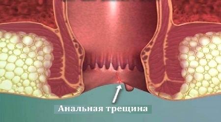Острая анальнальной трещина лечение в домашних условиях thumbnail