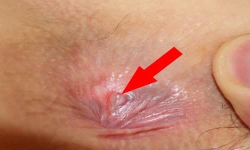 Трещина в заднем проходе кровоточит лечение
