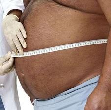 Симптомы асцита брюшной полости у женщин