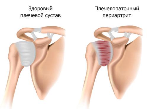 Лечение вывихов пальцев