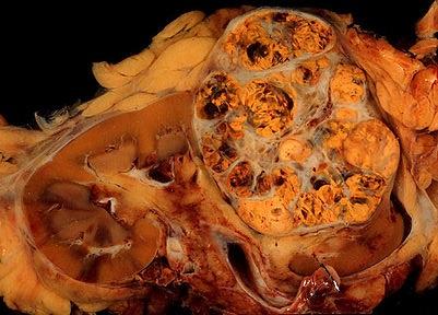 Чем опасны метастазы рака почки