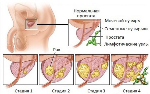 Рак простаты у мужчин - симптомы, лечение и признаки