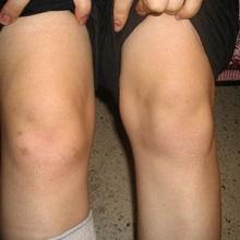 Реактивный артрит у детей: симптомы и лечение