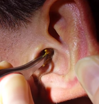 Как пробить и достать серную ушную пробку в ухе в домашних условиях у детей и взрослых? Причины образования, симптомы и лечение серной пробки в ухе у взрослых и детей