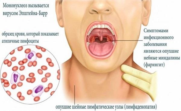 Как можно заразиться вирусом эпштейн барр