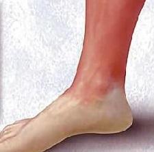 Как лечить рожу на ноге и руке в домашних условиях народными средствами, медикаментами