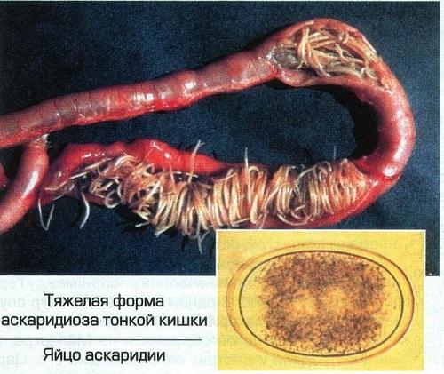Аскаридоз: симптомы и схема лечения у взрослых
