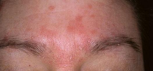 Как лечить себорейный дерматит на лице: фото, симптомы и лечение на дому