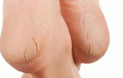 Как лечить потрескавшиеся пятки