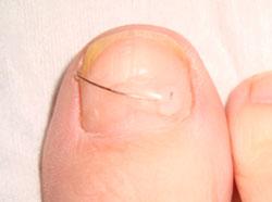 Вросший ноготь на ноге, что делать при вросшем ногте на большом пальце - лечение, удаление проблемы