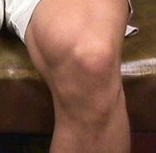 Болезнь Осгуда-Шляттера коленного сустава: лечение