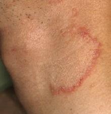 Дерматофития стоп, кистей рук и лица
