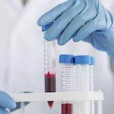 Срб в анализе крови что это