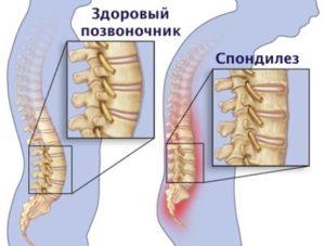 Спондилез поясничного крестцового отдела позвоночника