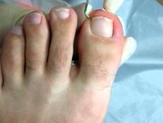 Как лечить вросший ноготь на ноге большого пальца в домашних условиях