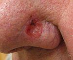 Из-за чего может быть рак кожи
