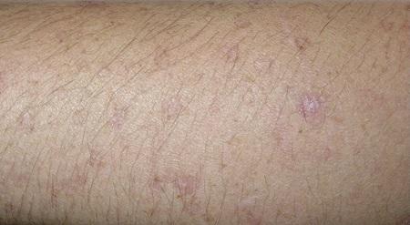 Рак кожи - первые признаки, как выглядит и проявляется начальная стадия, фото, разновидности, симптомы, методы лечения и диагностики