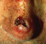 Как выглядит рак кожи: фото начальной стадии. Симптомы, лечение и прогноз