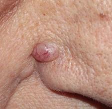 Базалиома кожи: насколько опасна и можно ли ее вылечить?