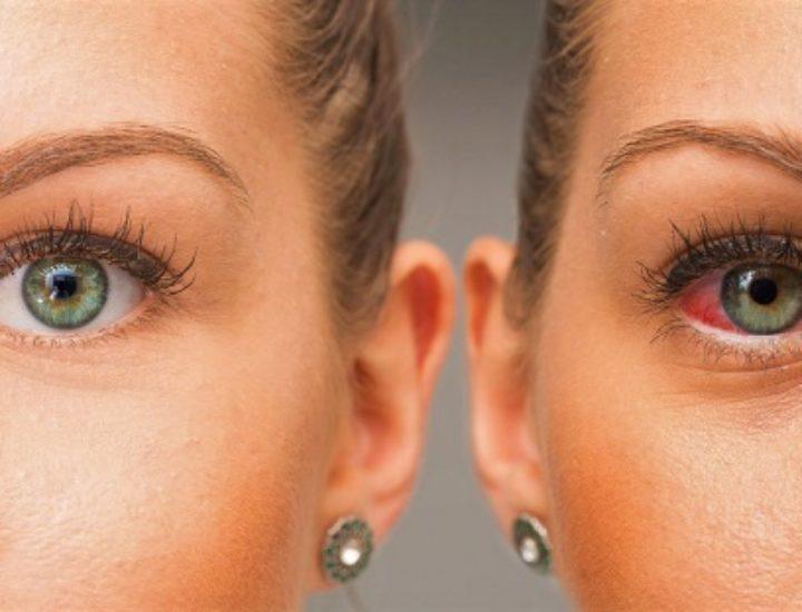 Синдром сухого глаза – симптомы и лечение