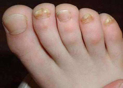 Красные пятна на теле болят ноги