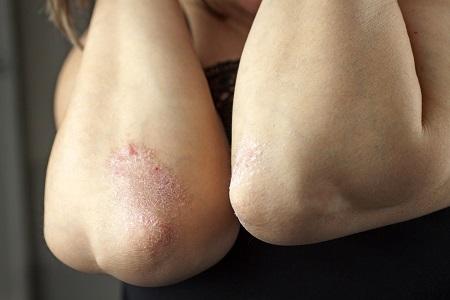 Шелушение кожи после лишая