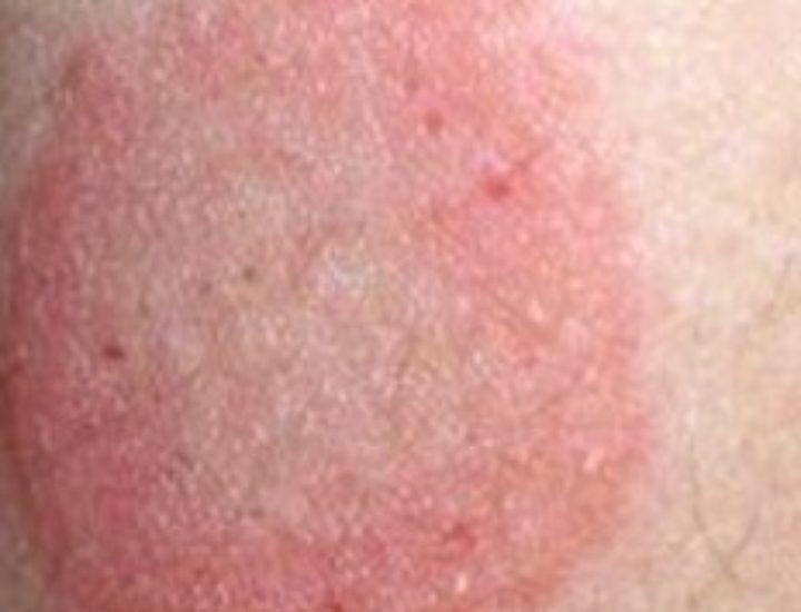 Розовый лишай – симптомы и лечение в домашних условиях
